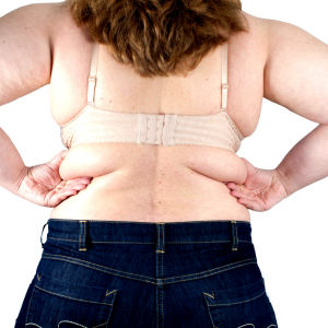 elhízás a háton egy nő melltartó alatti zsírt mutat